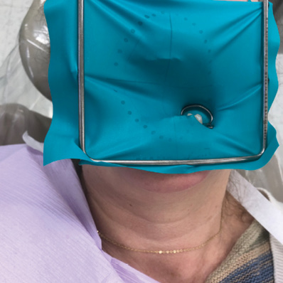 A case for the rubber dam: How the dental dam improves treatment and patient quality of care